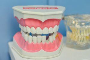 Kosten Zahnersatz